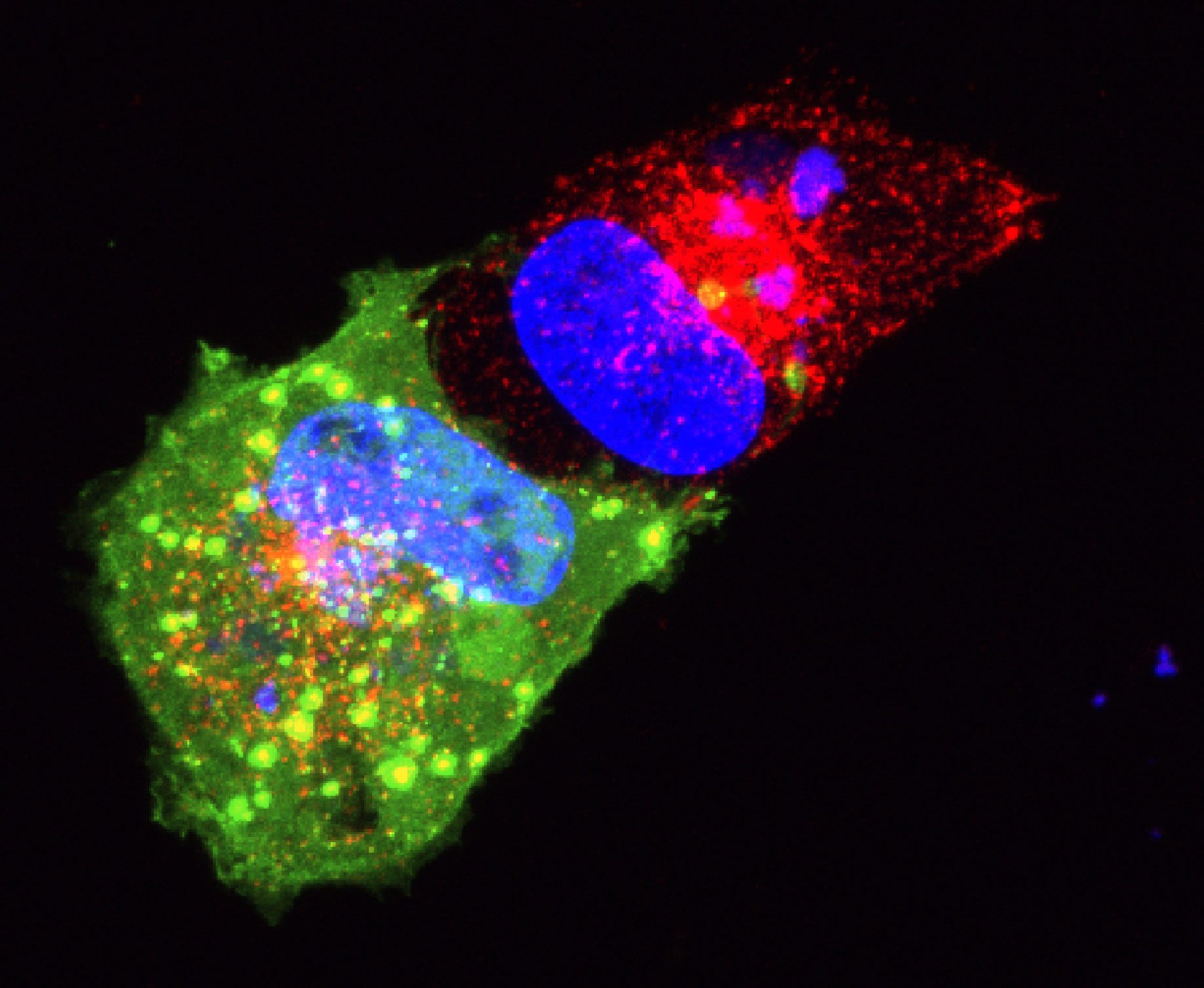 SVG-A glial cells transiently transfected with dominant negative dynamin (green) treated with transferrin-594 (red), and stained with DAPI (blue). 5 minutes post internalization. Courtesy of Colleen Mayberry and Melissa Maginnis, University of Maine.