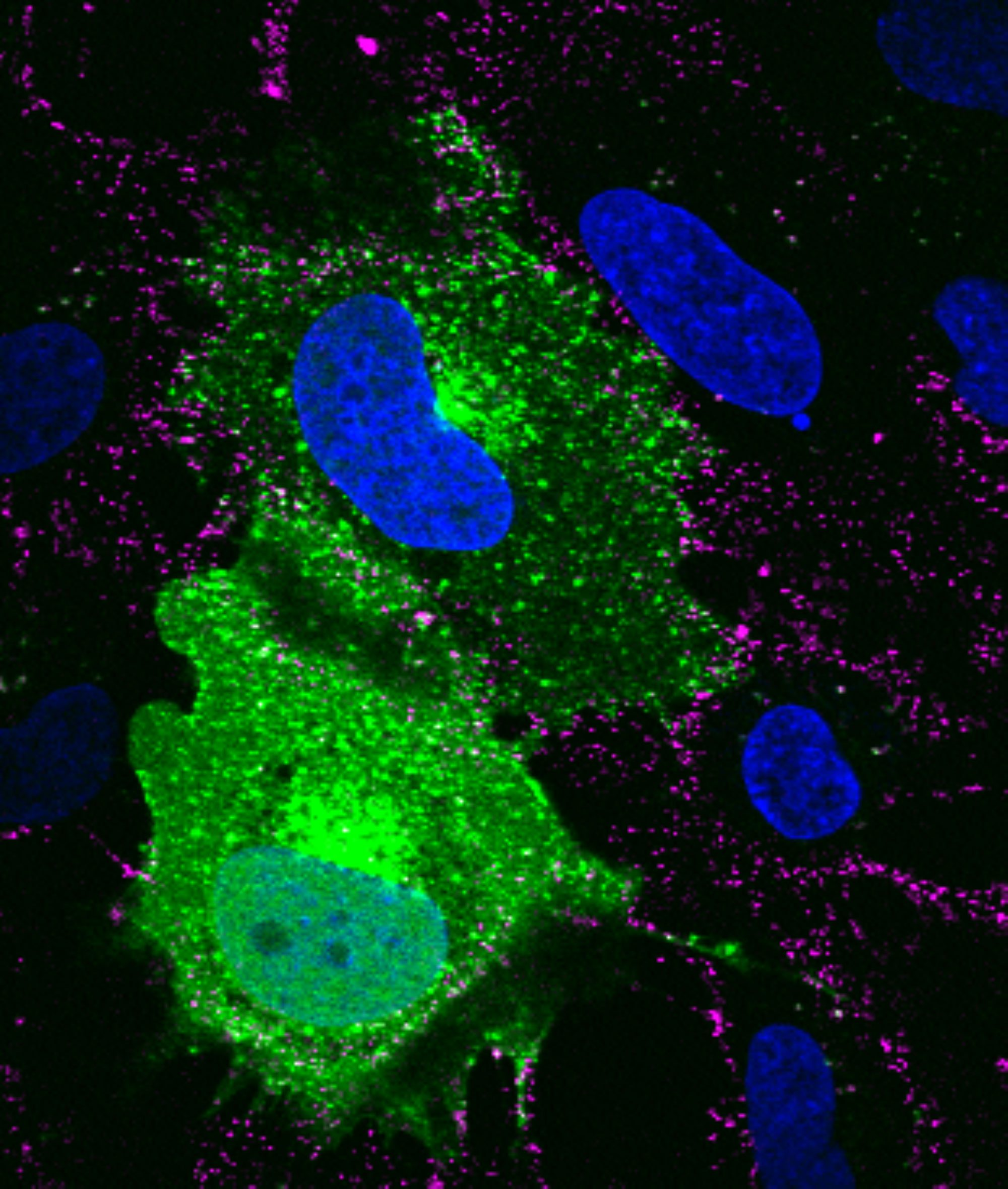 SVG-A glial cells transiently transfected with mEmerald clathrin (green), infected with JC polyomavirus labeled with Alexa Fluor 647 (pseudocolored magenta), 5 minutes post internalization. Nuclei are stained with DAPI (blue). Courtesy of Colleen Mayberry and Melissa Maginnis, University of Maine.
