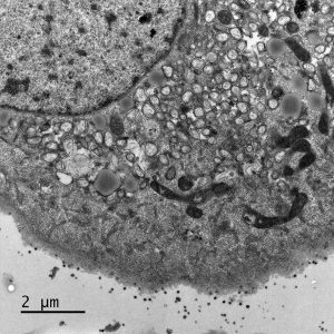 """Electron micrograph of Vero E6 cells infected with SARS-CoV-2, 8 h post infection. Viral replication organelles. These virus-induced structures accumulate in large clusters in the perinuclear region and primarily contain double-membrane vesicles (DMVs). See Ogando et al., """"SARS-Coronavirus-2 Replication in Vero E6 Cells: Replication Kinetics, Rapid Adaptation, and Cytopathology."""" 2020. J. Gen. Virol. doi: 10.1099/jgv.0.001453 PMID 32568027. Courtesy of Ronald Limpens, Montse Bárcena and Eric Snijder, Leiden University Medical Center, the Netherlands."""