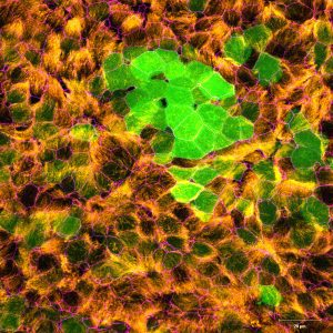 Well-differentiated small airway epithelial cells infected with recombinant human respiratory syncytial virus expressing enhanced green fluorescent protein at 3 days post-infection. Green, recombinant human respiratory syncytial virus; orange, acetylated α-tubulin (cilia); magenta, zona occludens 1 (tight junctions). 40x magnification. Courtesy of Laurine Rijsbergen, Department of Viroscience, Erasmus Medical Center, Rotterdam, The Netherlands.